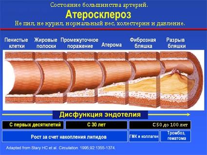 Отказ от сигареты — это стресс для организма, и в этом случае колебания веса
